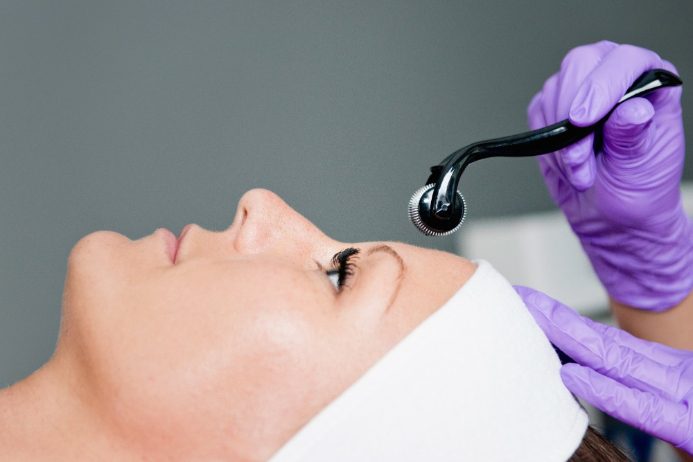 A patient receiving Collagen Induction Therapy