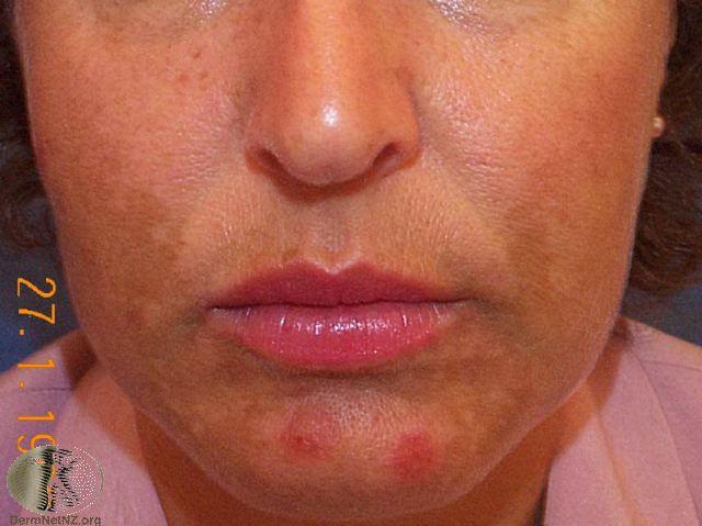 Skin Pigmentation | Melasma Example
