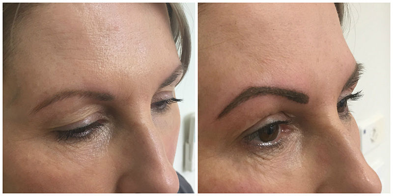 Eyebrow Tattooing Geelong Before and After | Patient 1 | Cosmetic Tattooing Geelong