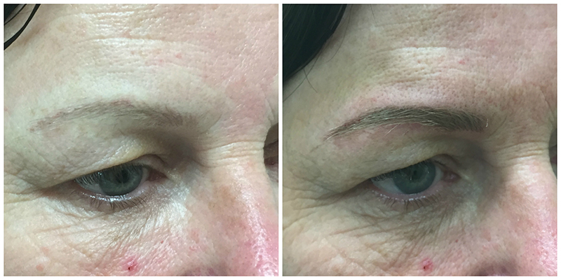Eyebrow Tattooing Geelong Before and After | Patient 2 | Cosmetic Tattooing Geelong
