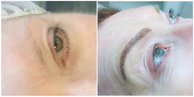 Cosmetic Tattooing Geelong Eyebrow Tattooing Geelong Crc Geelong