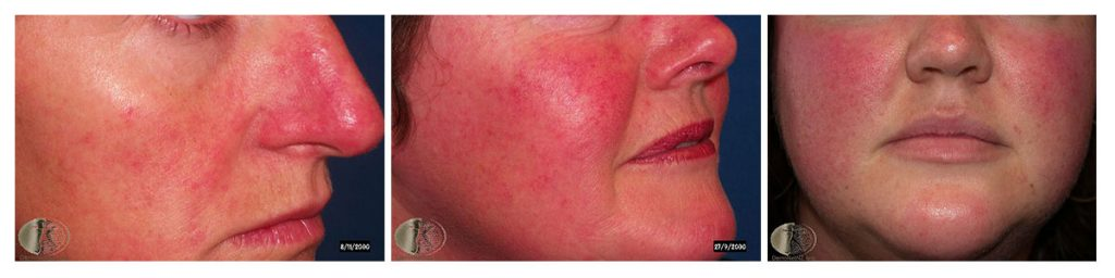 Examples of the rosacea condition