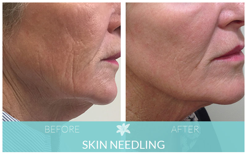 Skin Needling Results | Skin Needling Before and After | Skin Needling Geelong