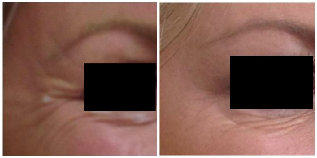 anti wrinkle injections | before and after pictures of a patient who has received crow's feet anti-wrinkle injections treatment