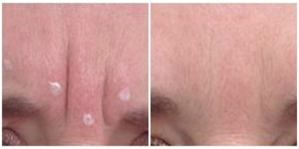 anti wrinkle injections | before and after pictures of a patient who has received anti-wrinkle injections treatment