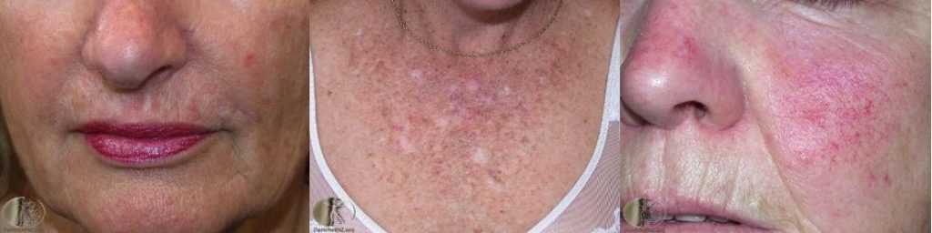 sun damaged skin | actinic keratoses examples