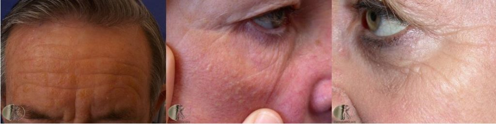 sun damaged skin | photoaging examples
