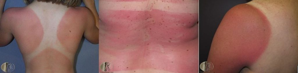 sun damaged skin | sun burn examples