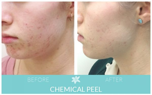 crc-before-after-peel-patient1