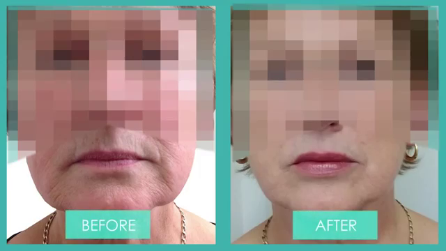 A front on view of a Before & After photo of Lip enhancement for an older patient