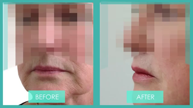 A side on view of a Before & After photo of Lip enhancement for an older patient