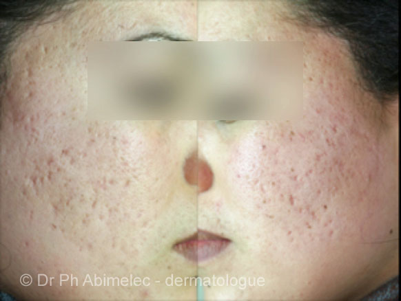 Scar Revision | Example of acne scarring