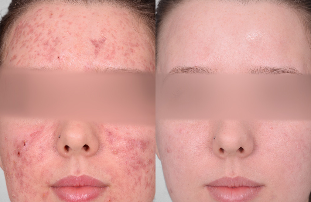 Before and after Kleresca® Acne Treatment