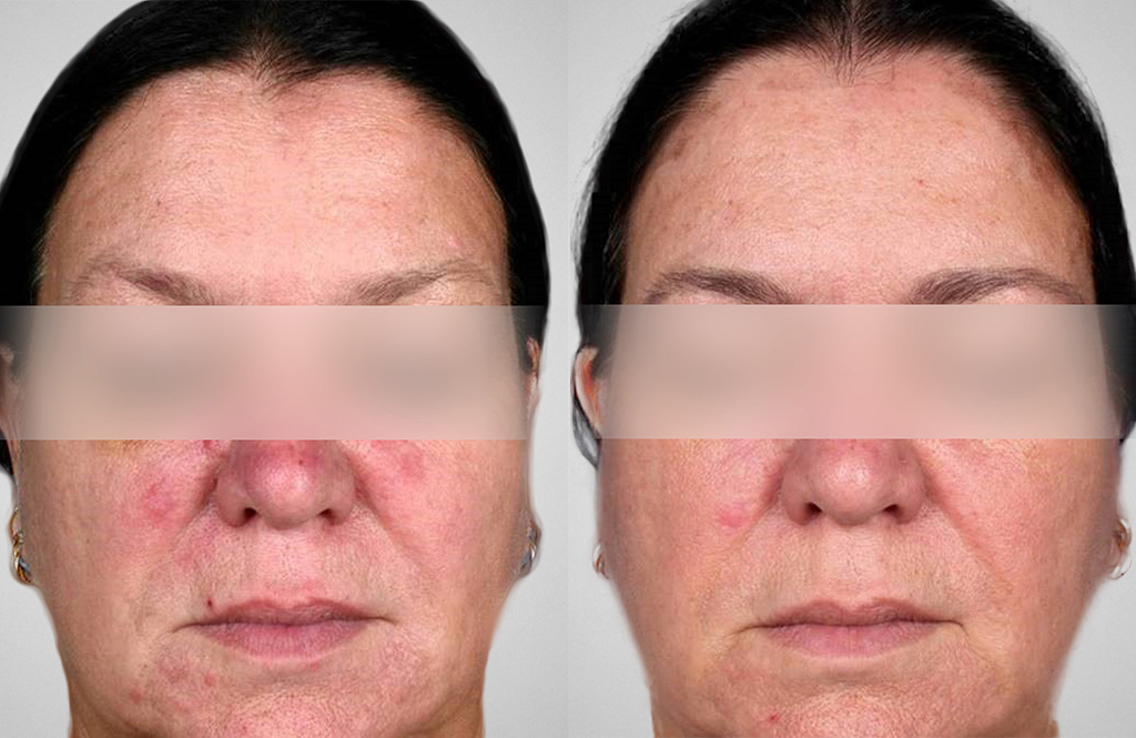 Before and after Kleresca® Rosacea Treatment