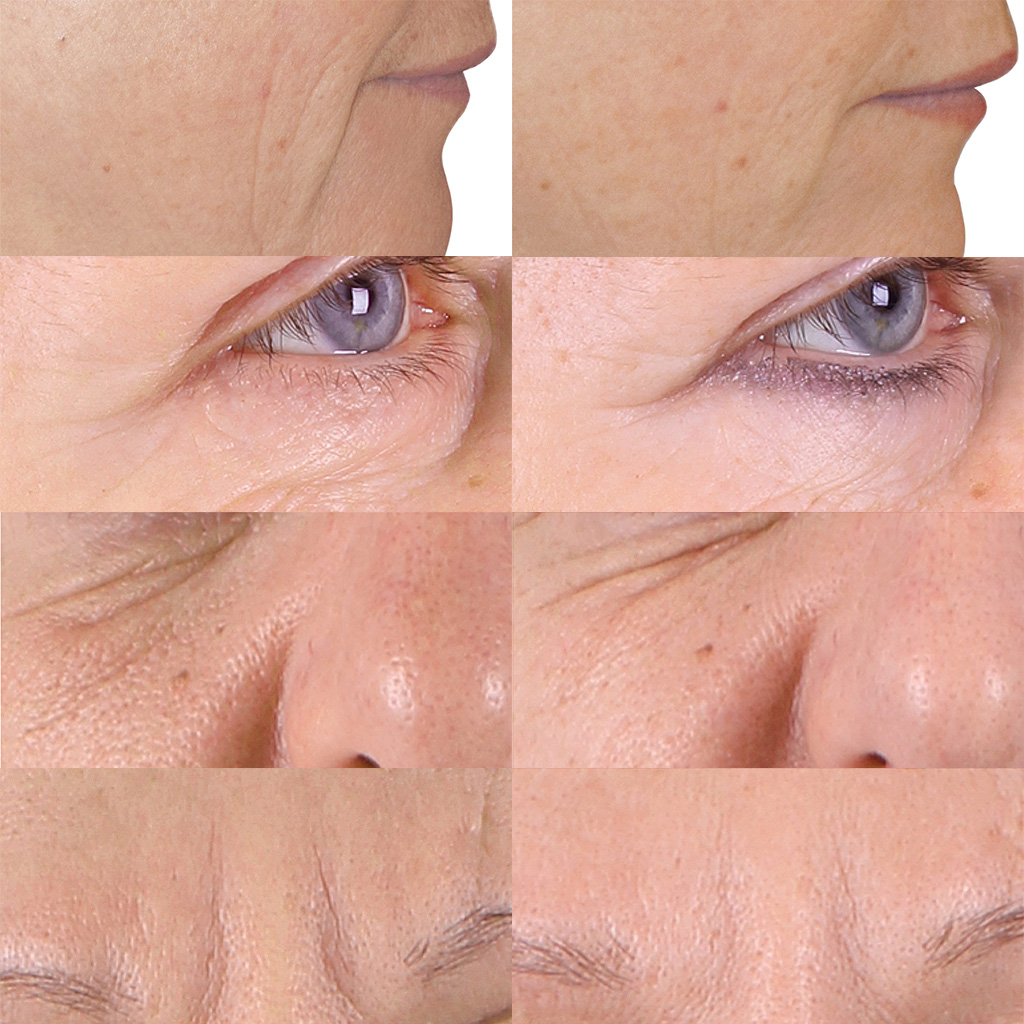 Before and after Kleresca® Skin Rejuvenation